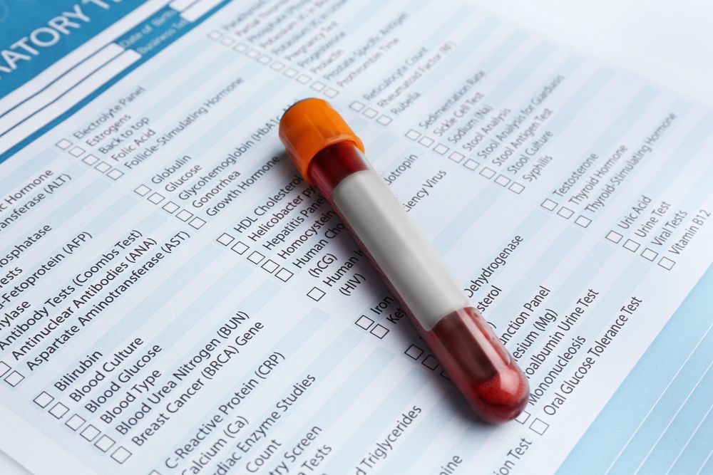 top 10 blood tests for older adults what to know
